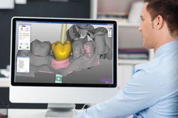 laboratorio protesis dental madrid